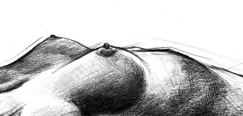 mastoplastica lugano